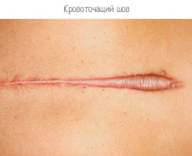 Что необходимо знать и делать, если разошелся шов после операции