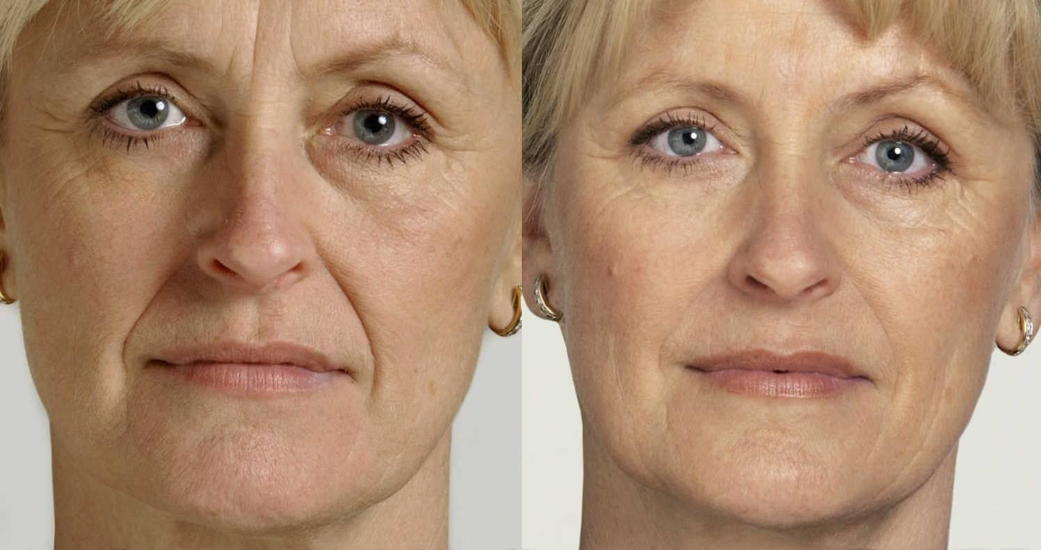 Процедуры для кожи лица после 50 лет