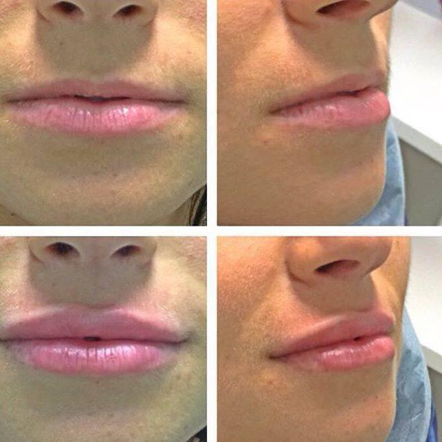Как делают коррекцию формы губ — выбор метода