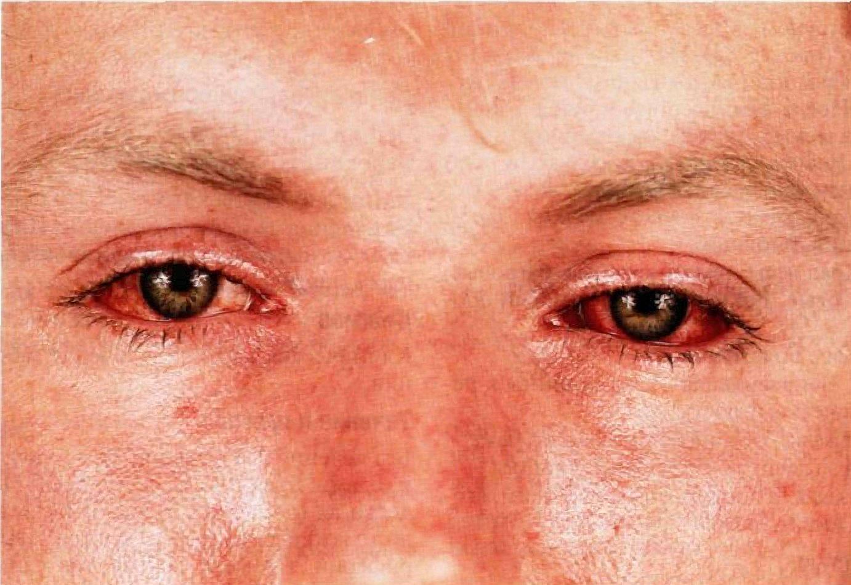 Заболевания кожи: 6 категорий и способы лечения