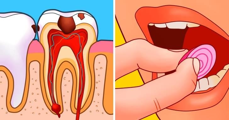 При температуре болят зубы