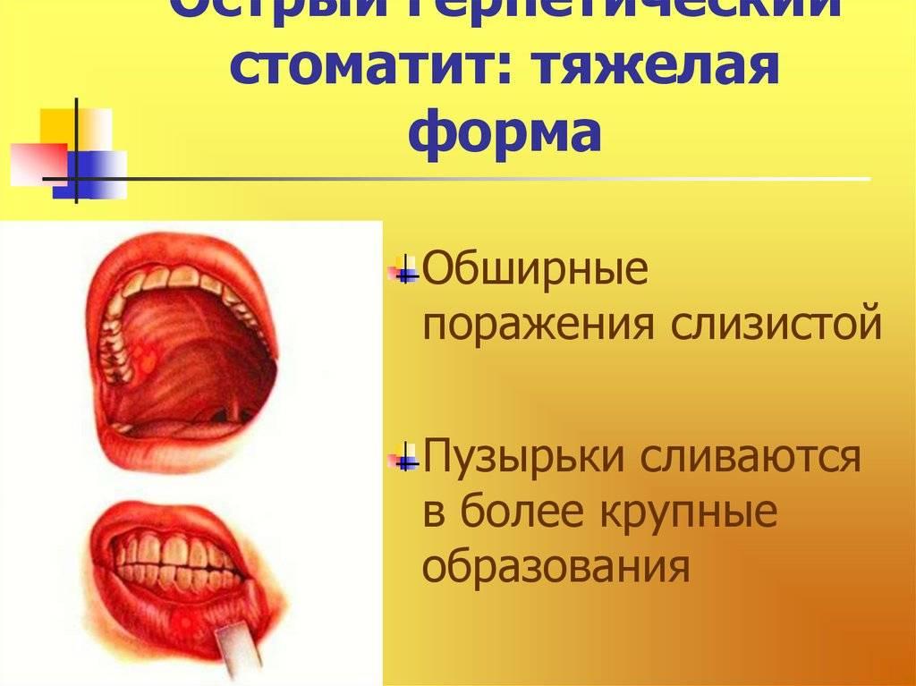 Язвенно-некротический стоматит: симптомы, причины, диагноз, лечение и профилактические меры