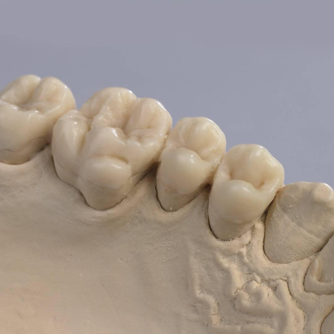 Моделирование зубов из воска