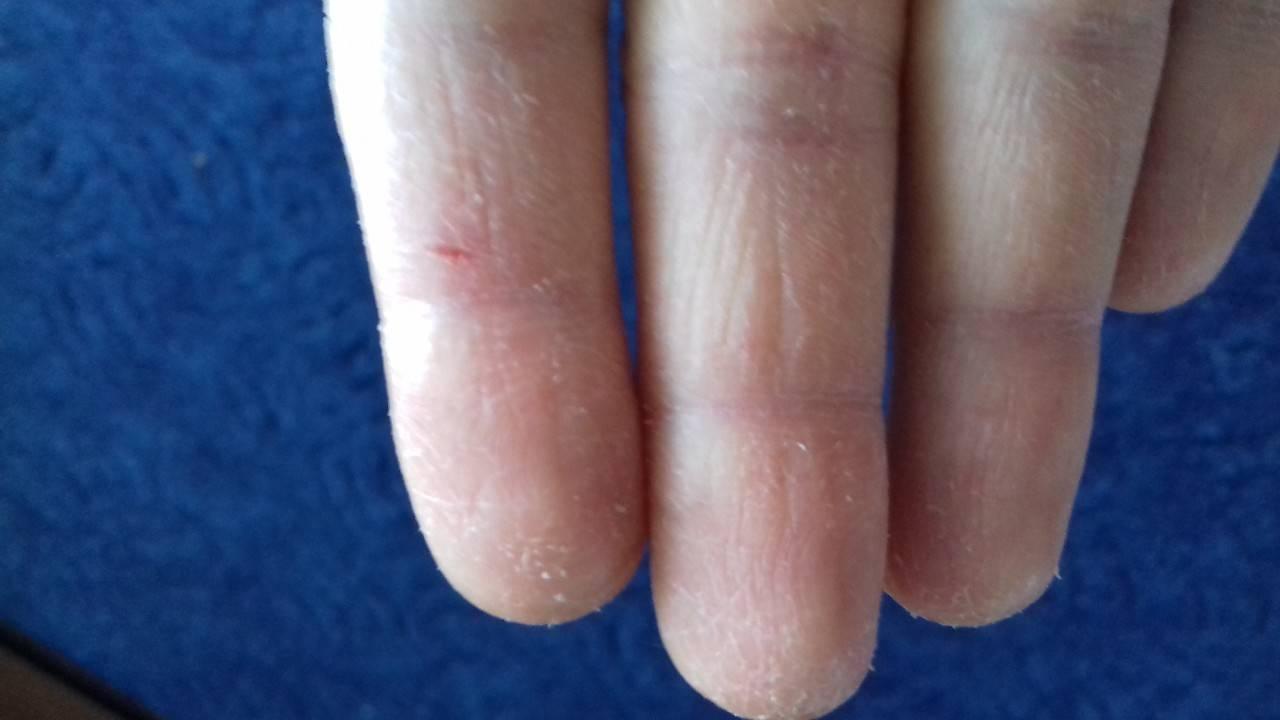 Трещины на пальцах рук. причины и лечение. 4 популярных метода народного врачевания