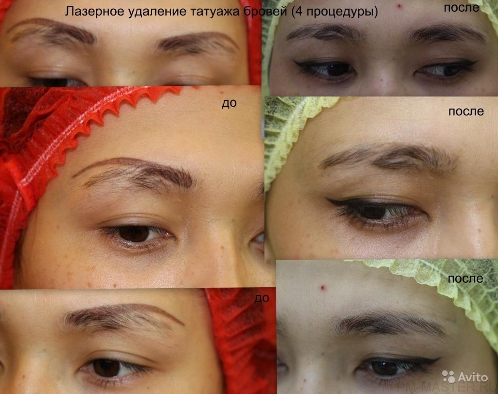 Стоит ли делать татуаж бровей: плюсы и минусы процедуры