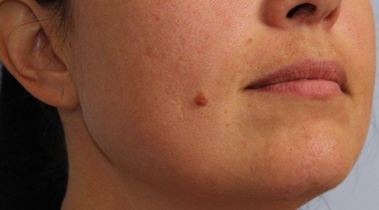 Шишки на лице: что это, виды, способы лечения