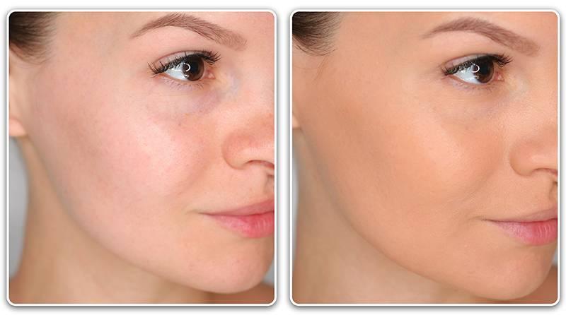 Тональные кремы для проблемной кожи: рейтинг