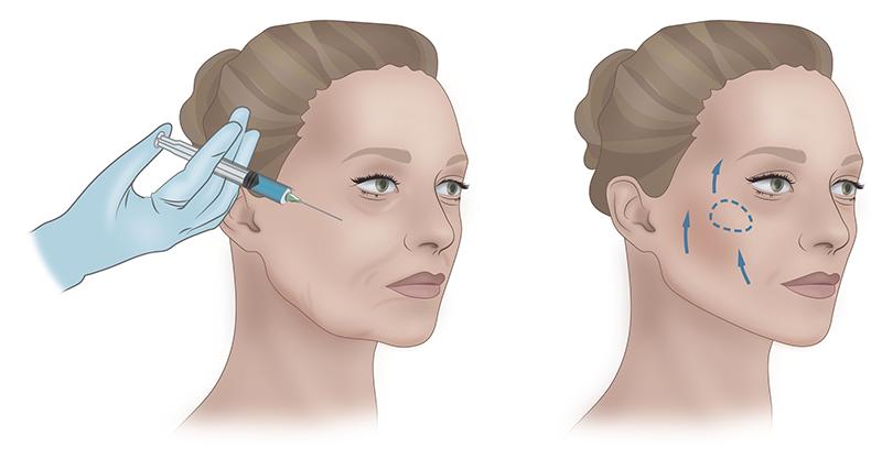 Коррекция скул филлерами — эффект омоложения без операции с фото до и после