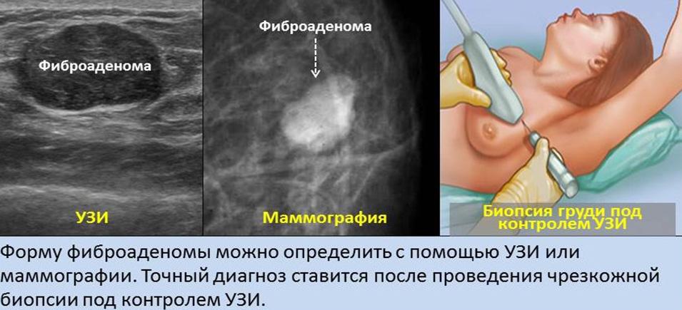 Вероятность трансформации фиброаденомы молочной железы в рак