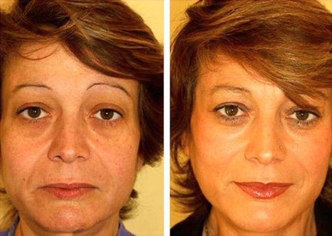 Уход за лицом после 35 лет: самые эффективные косметологические процедуры