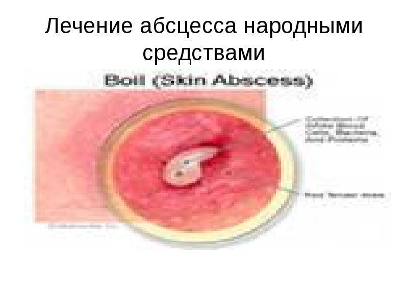 Бартолинит и абсцесс бартолиновой железы