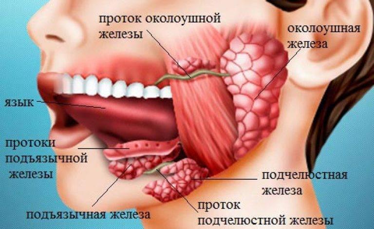 Камни в слюнной железе: симптомы и лечение
