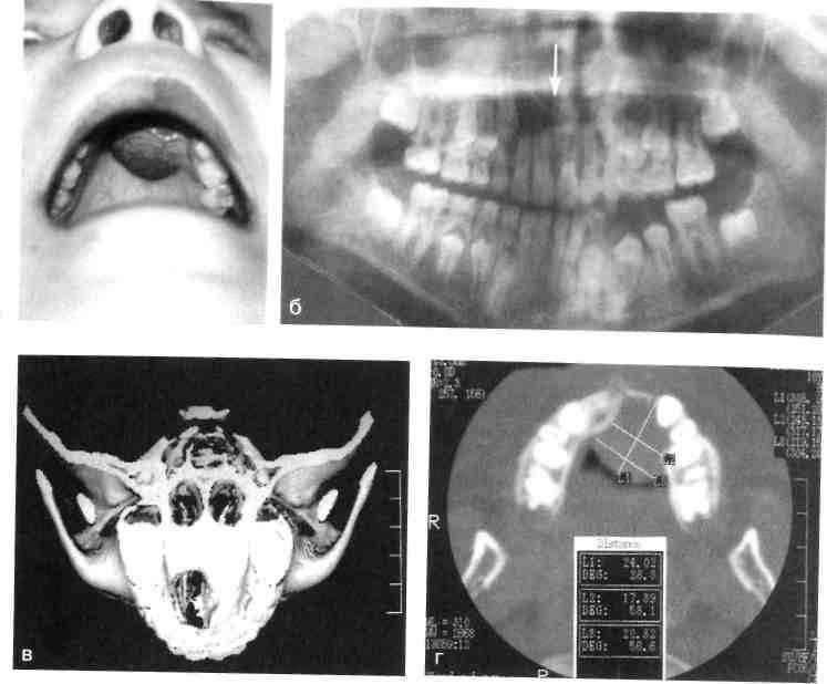 Злокачественные опухоли верхнечелюстной пазухи: причины, симптомы, диагностика, лечение