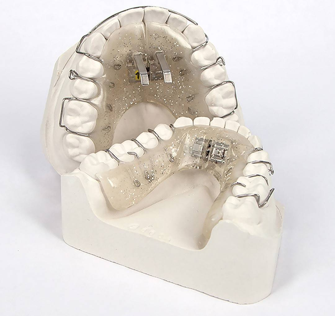 Хирургическое расширение верхней челюсти
