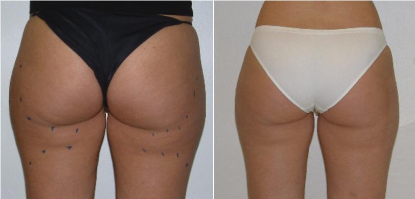 Польза и вред аппаратной косметологии для лица и тела