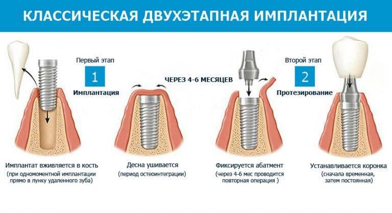 Выбор между зубным мостом и имплантом