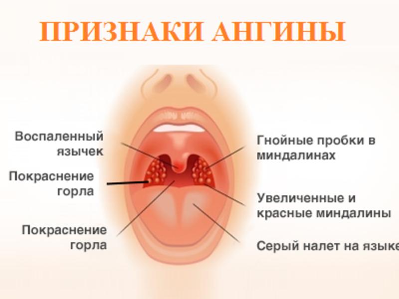 Как лечить бактериальную ангину – лечение тонзиллита в горле