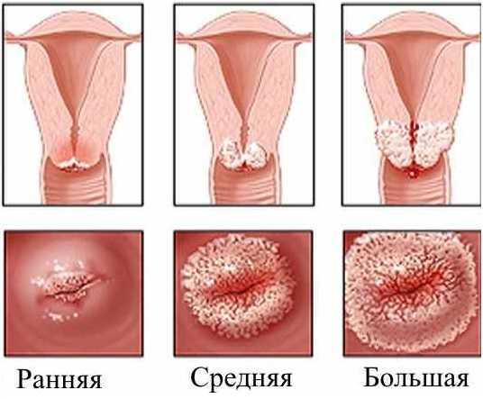 Лечение чистотелом при миоме матки