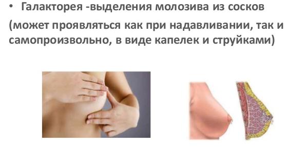 Молозиво при беременности: что оно из себя представляет и когда начинает вырабатываться