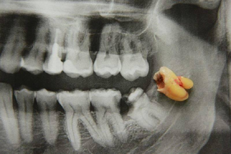 Корень зуба зарос десной: что делать