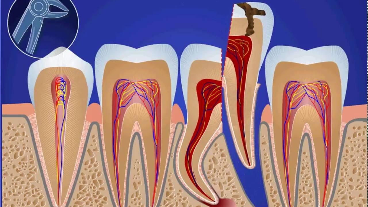 Осложнения во время операции удаления зуба, их профилактика и лечение