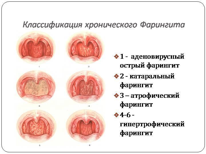 Прыщи на и в горле: причины и лечение