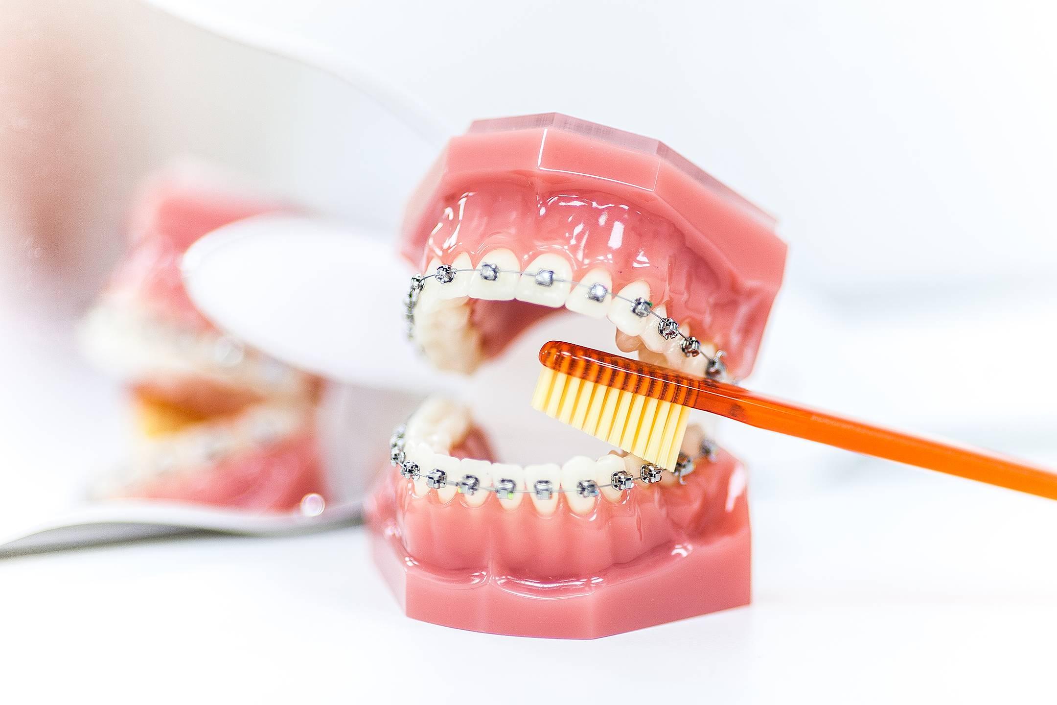 Когда начинают двигаться зубы после установки брекетов