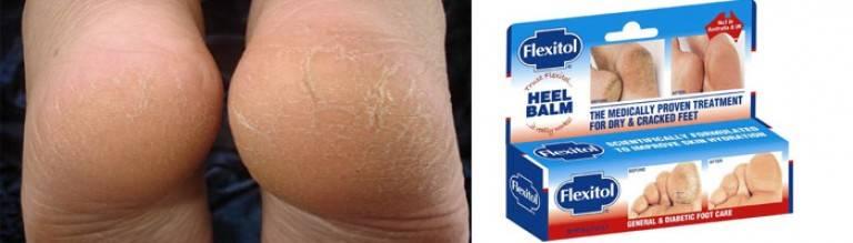 Как сделать пятки гладкими: 10+ способов избавления от трещин и огрубевшей кожи