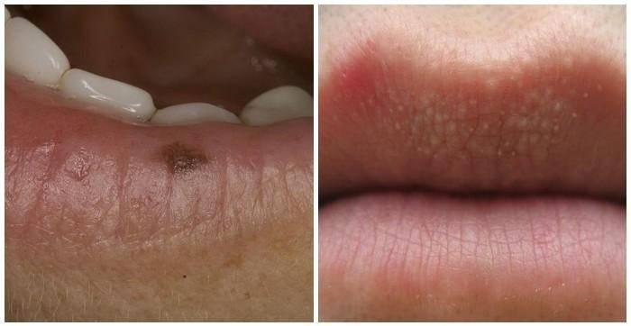 Что означают черные точки на губах и как от них избавиться