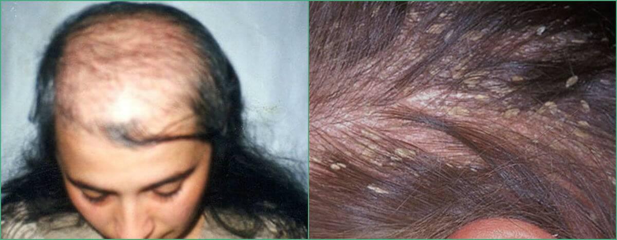 Атерома волосистой части головы — причины, способы удаления