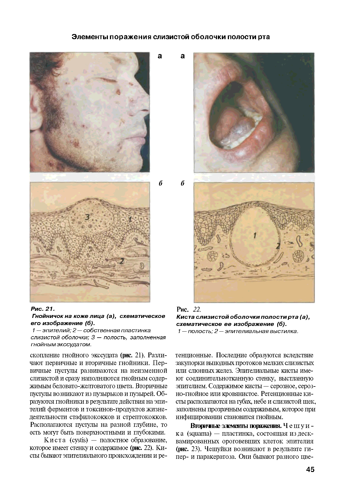 Болезни полости рта