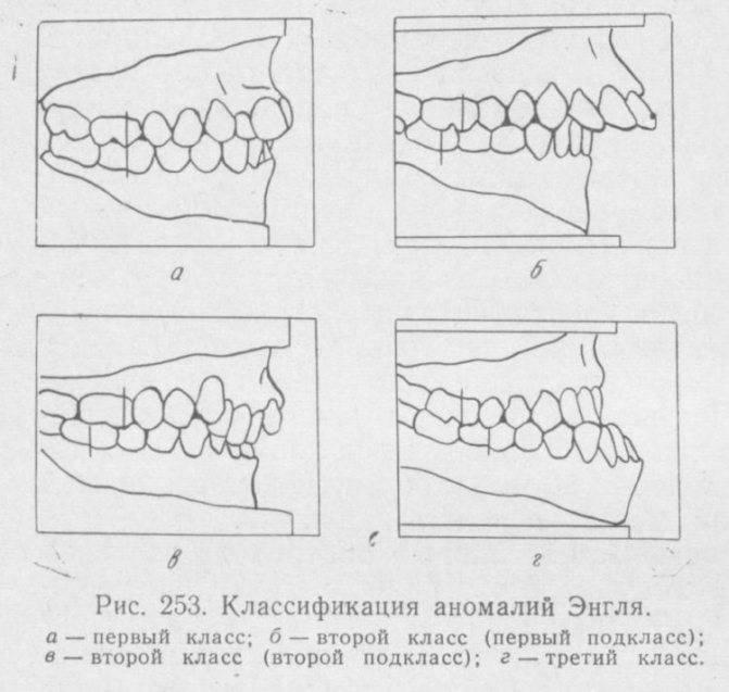 Профилактика зубочелюстных аномалий