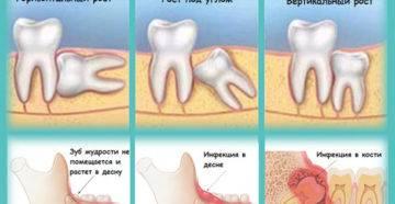 Почему необходимо наложение швов после удаления зуба мудрости