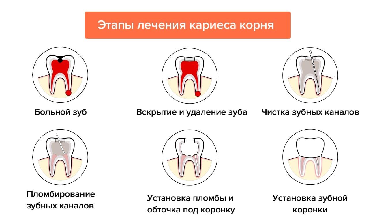 Чем опасен кариес корня зуба