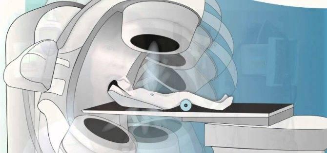 Выделения после лучевой терапии при раке шейки матки — сам себе доктор