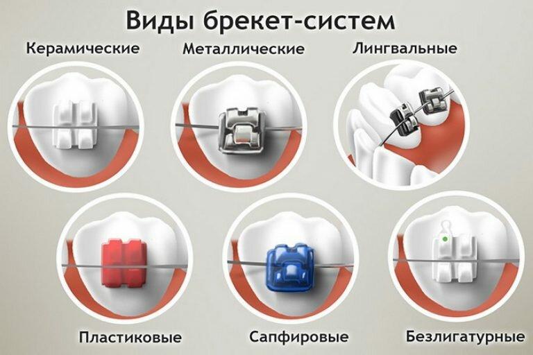 Особенности конструкции брекеов inspire ice, установка и адаптация