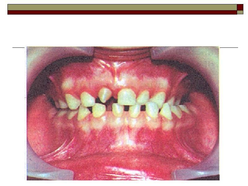 Акульи зубы или что такое полиодонтия?