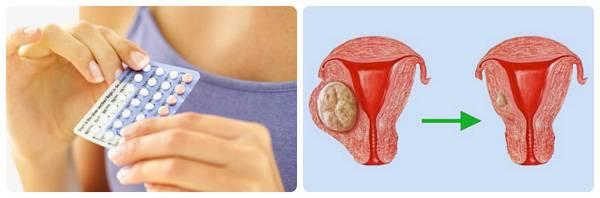 Что не следует делать при миоме матки: основные противопоказания