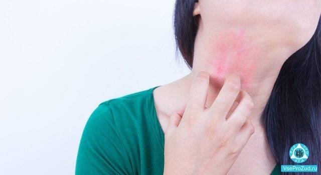 Причины появления красных пятен на лице у детей и взрослых — лечение
