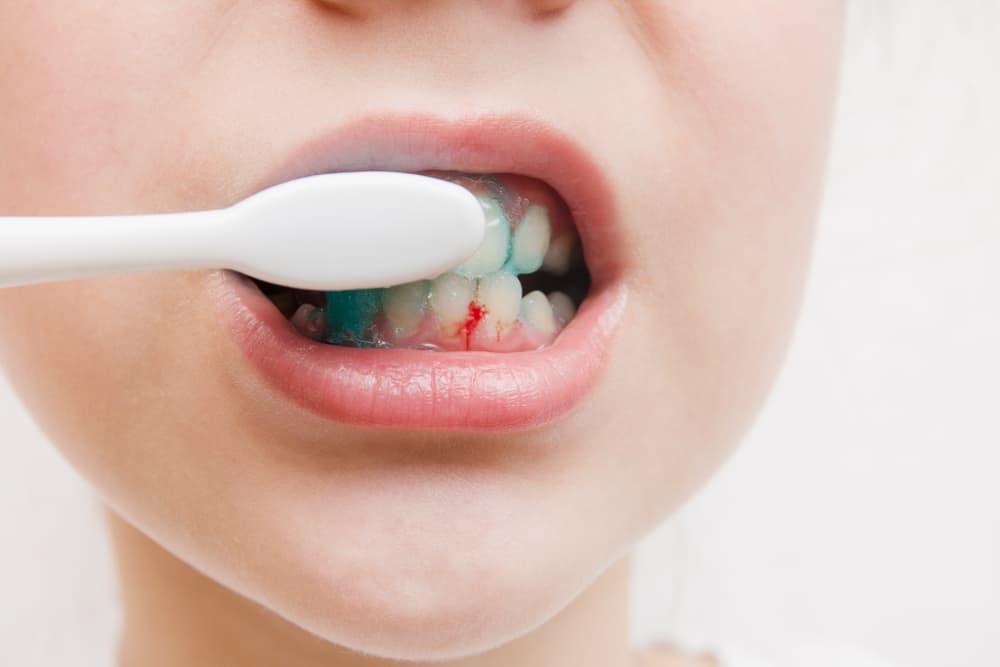 Почему кровоточат десна при чистке зубов? советы по профилактике и лечению