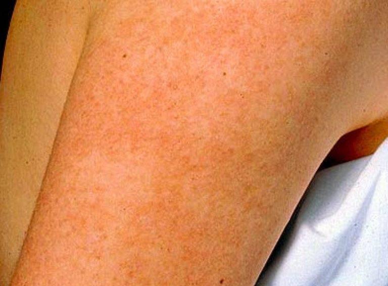 Кератоз — что это такое и как лечить кожу лица и тела