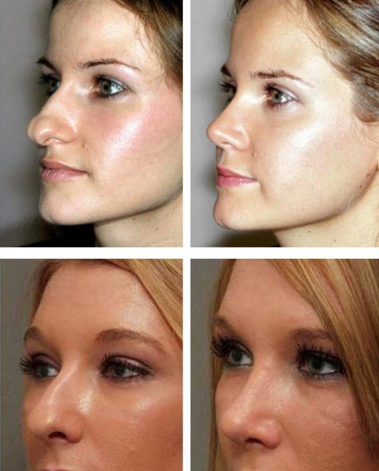 Выпрямление и выравнивание искривления перегородки носа