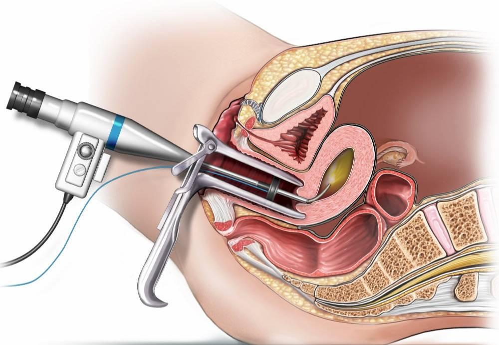 Признаки воспаления после вакуумной аспирации. когда начинаются месячные после аборта: медикаментозного, обычного, вакуумного, и что должно насторожить