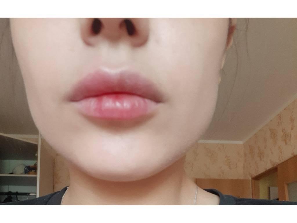 Опухла и онемела нижняя губа