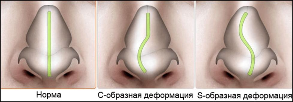 Искривление носовой перегородки: причины патологии, сопутствующие признаки, лечение и прогноз