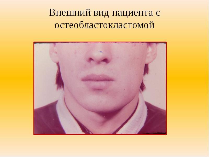 Признаки амелобластомы или адамантиномы нижней и верхней челюсти с фото, способы лечения заболевания