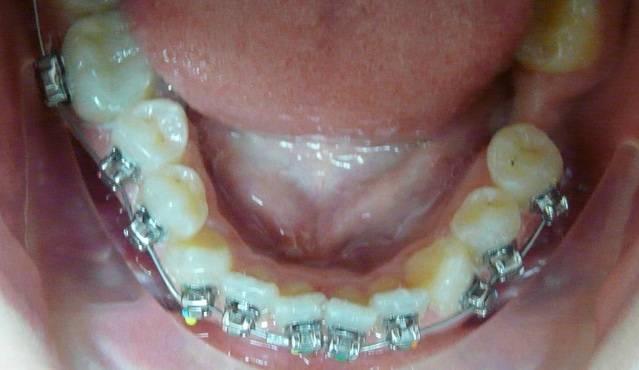 Не поздно ли исправлять зубы после 30 лет? можно поставить брекеты только на одну челюсть?