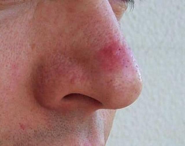 Покраснение вокруг носа: возможные причины, симптомы, проведение диагностических исследований и лечение