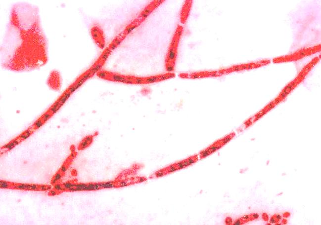 В мазке споры и мицелий