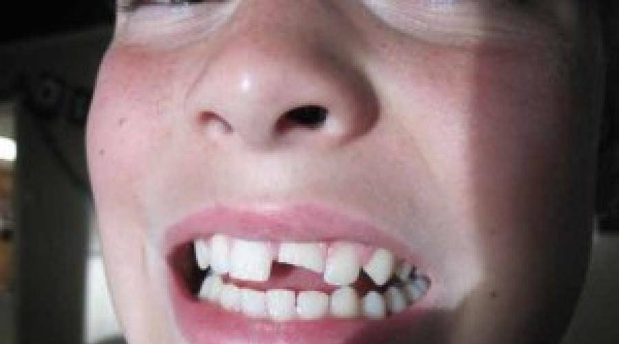 Куда девать выпавший зуб у взрослого